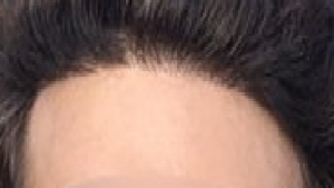 hairline with no transition zone