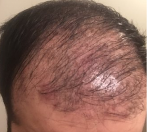 hair transplant infection