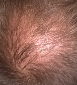 new early balding crown