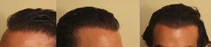 no hairline hairline 2