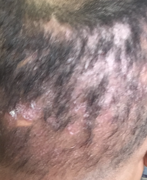 overharvested FUE