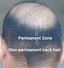 permanent zone