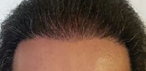 rough hairline