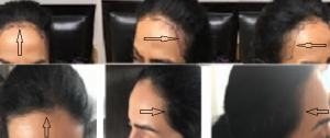 customized transplanted hairline