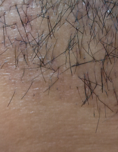 spicules of hair