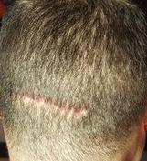 strip scar