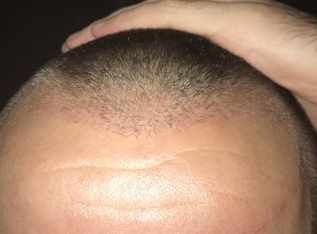 9 weeks after FUE