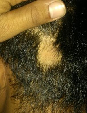 alopecia areata 2