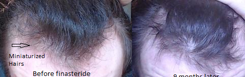 before and after F