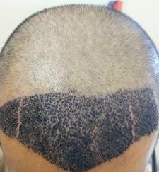cracks on head