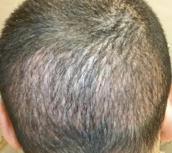 depleted donor area from 2000 FUE grafts