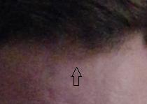 frontal bald spot