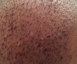 pimples at 6 days