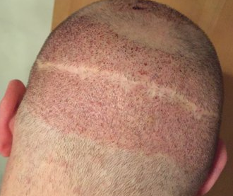 strip scar1