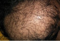 thinning hair in male