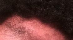 traction alopecia female2