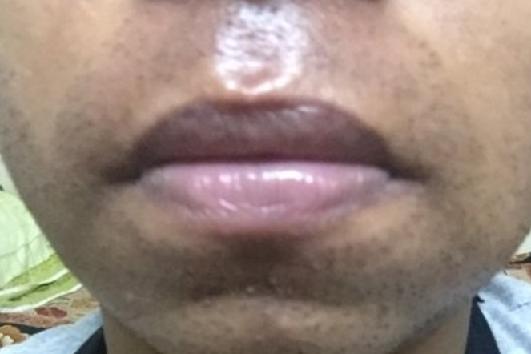 1 months following beart TX