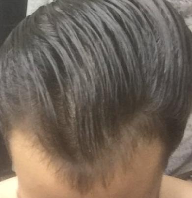 21 hair loss
