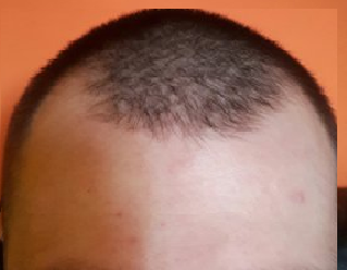 23 and wants hair transplant