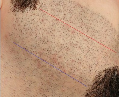 beard cobblestonning