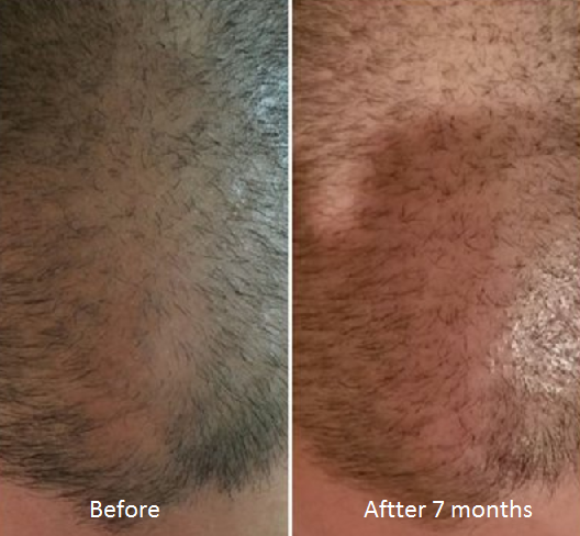 before and after 7 months