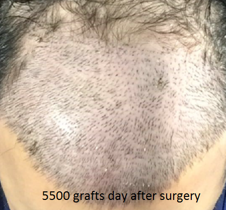 day of surgery