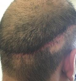 donor FUT scar severe