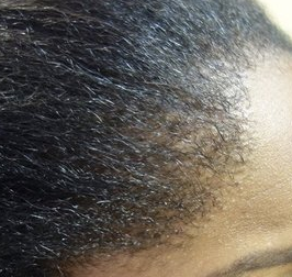 hairline bumps
