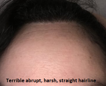 hairline high and harsh
