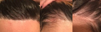 hairline lowering advancement scar
