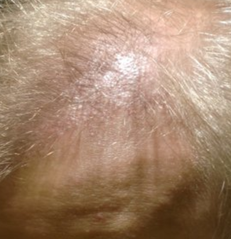 small bumps on scalp