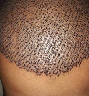 soldier hair