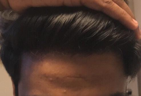 18 - am I balding