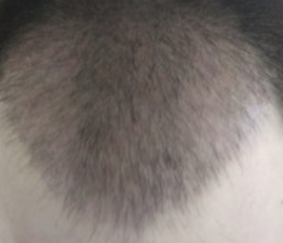 3 month growth
