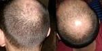 Class 6 balding pattern
