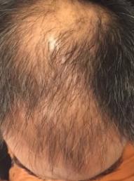 21 advanced balding