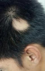 alopecia areata 4