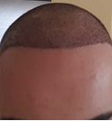 bad hairline 1
