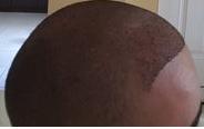 bad hairline 2