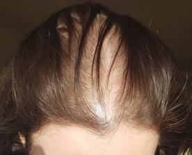 diffuse female hairloss2