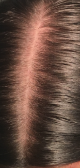 female hair loss2