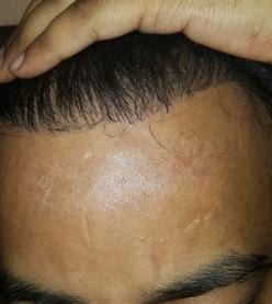 harsh hairline