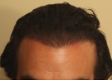 normal hairline
