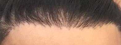 poor hairline