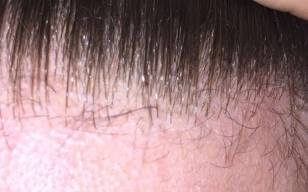 vellus hairs