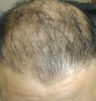 8 month growth