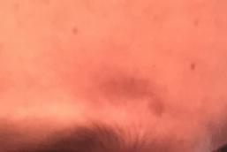bond brow reduction scar