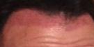 pink scalp