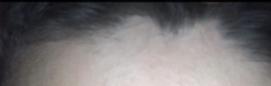irregular hairline