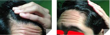 maturing hairline2